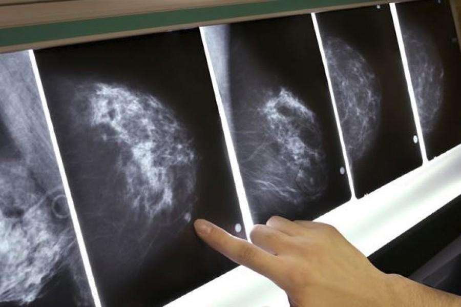 Egy orvos meglepő őszinteséggel beszélt a mammográfiáról. Minden nőnek el kellene olvasni.