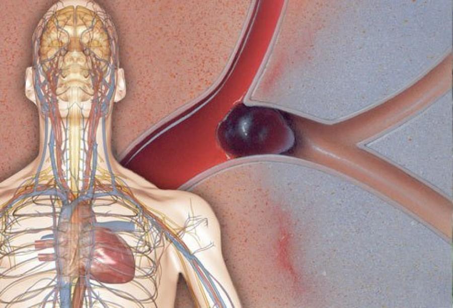 Ha ezeket a tüneteket tapasztalod, életveszélyes vérrög lehet a szervezetedben